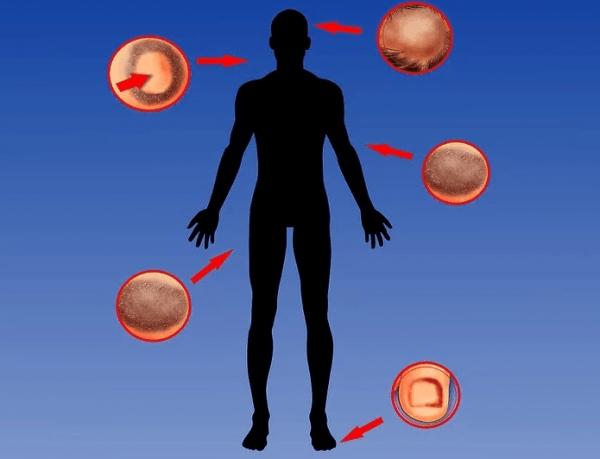 Стригущий лишай поражает различные части тела