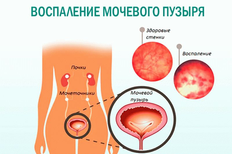 https://med-explorer.ru/wp-content/uploads/2018/11/Vospalenie-mochevogo-puzyirya.jpg