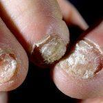 Лечение грибка ногтя: запущенная форма