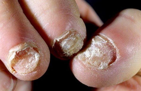 Запущенный грибок ногтей требует длительного лечения