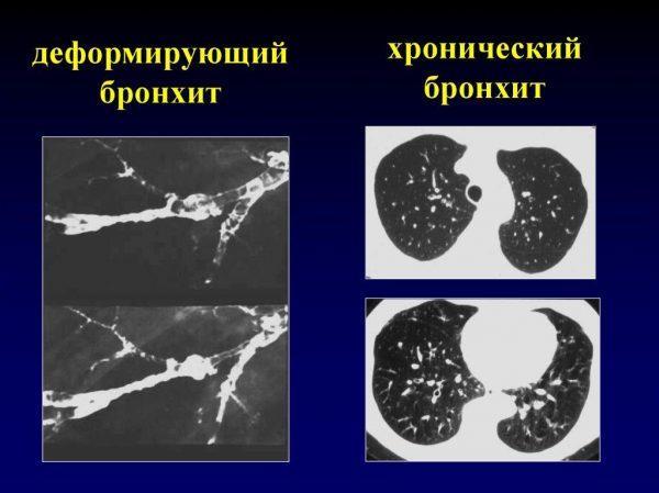 Деформирующий бронхит и хронический бронхит