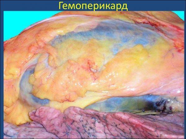 Гемоперикард