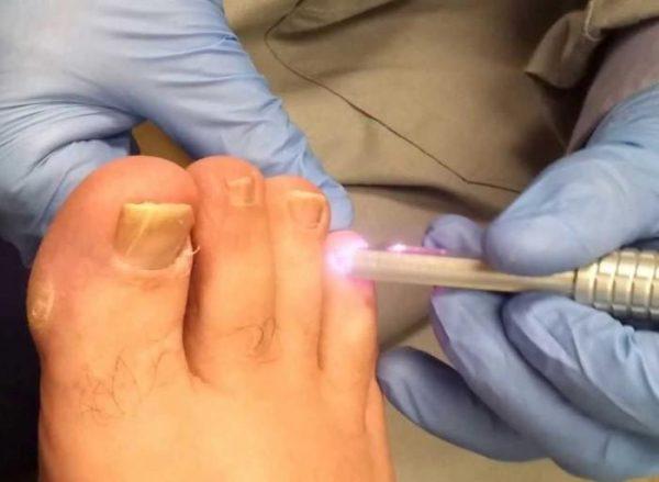 Лечение лазером грибка ногтей