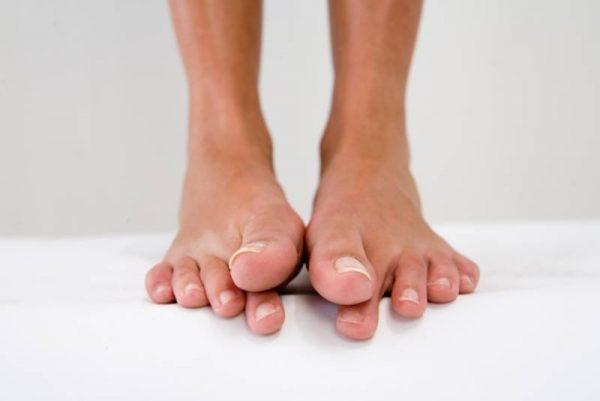 Пошевелите большими пальцами ног