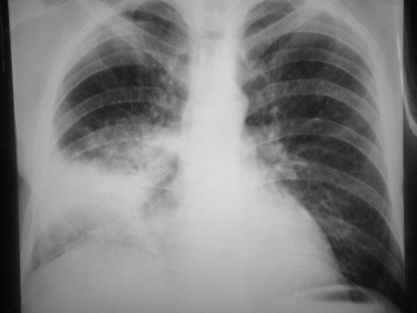 Правосторонняя пневмония на рентгенограмме