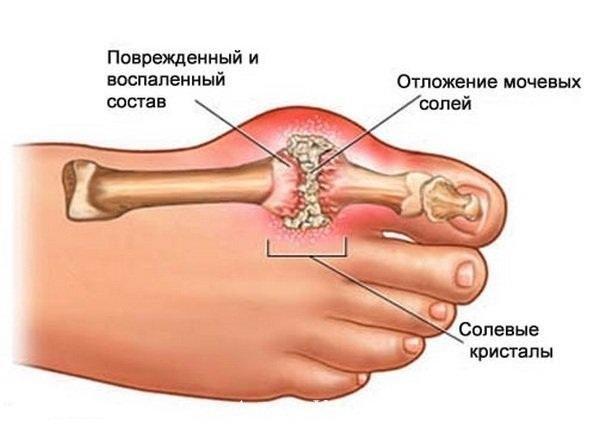 Избыток мочевой кислоты в организме может стать причиной подагры