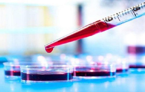 Определить уровень мочевой кислоты поможет биохимический анализ крови