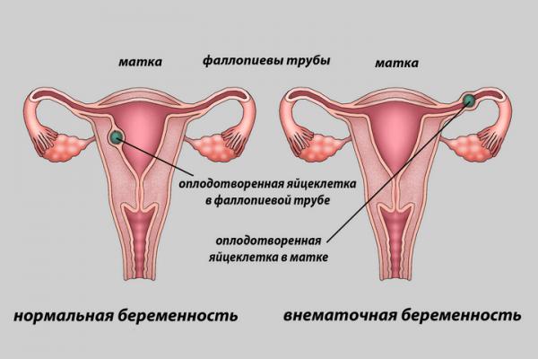 Болят яичники при вынашивании ребенка