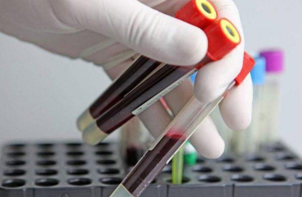 Для чего нужен анализ крови на аллергены IgE