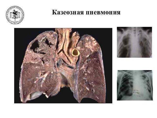 Как выглядит казеозная пневмония