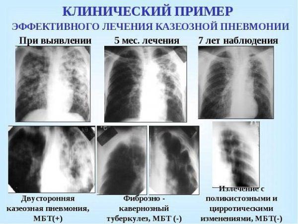 Клинический пример лечения казеозной пневмонии