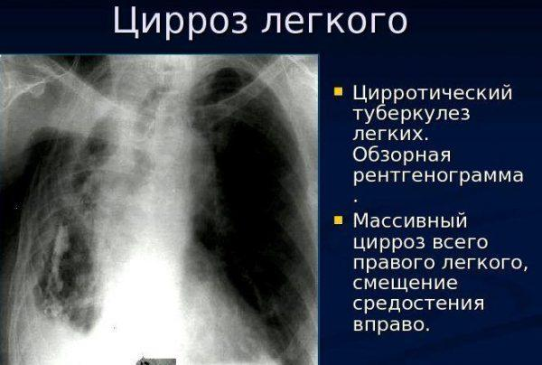 Осложнением пневмонии является цирроз легкого