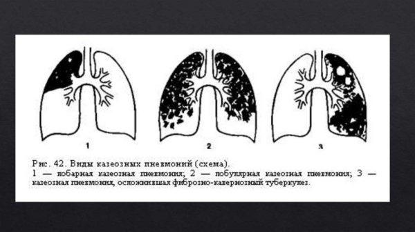 Виды казеозной пневмонии