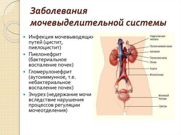 Заболевания мочевыделительной системы