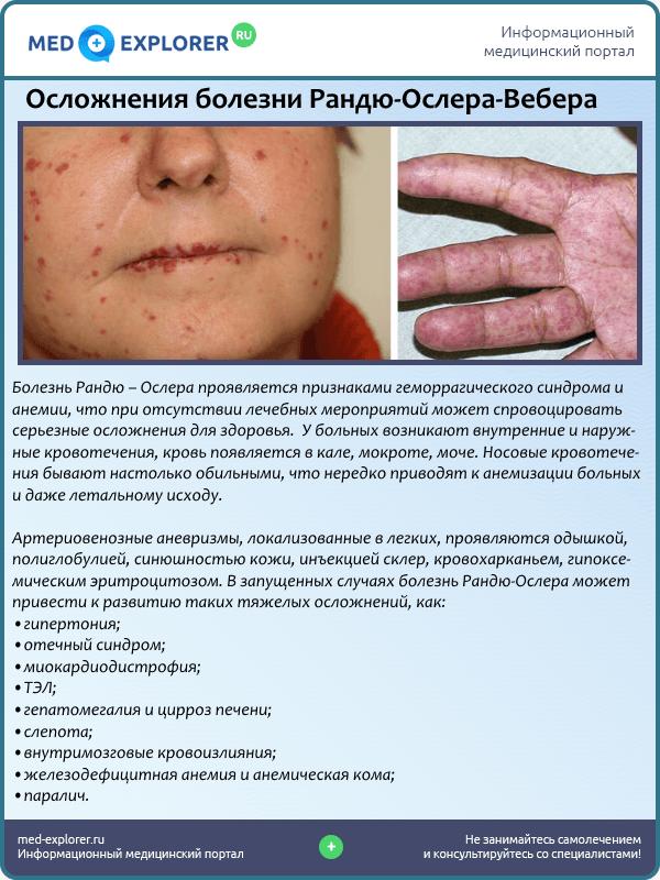 Осложнения болезни Рандю-Ослера-Вебера