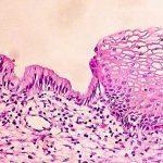 Плоскоклеточная метаплазия: причины развития, симптомы, методы лечения