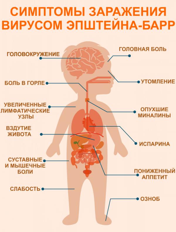 Симптомы вируса Эпштейна-Барр