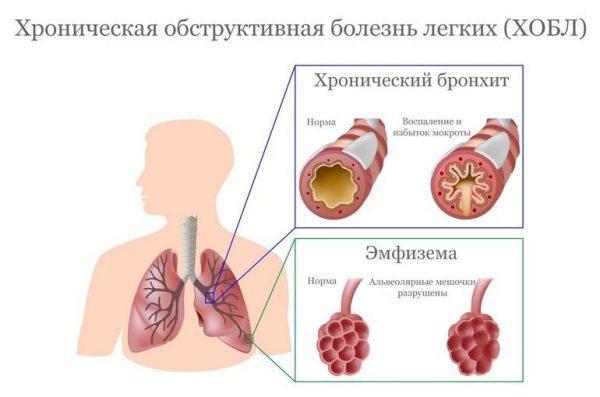 Плоскоклеточная метаплазия часто развивается на фоне обструктивной болезни легких