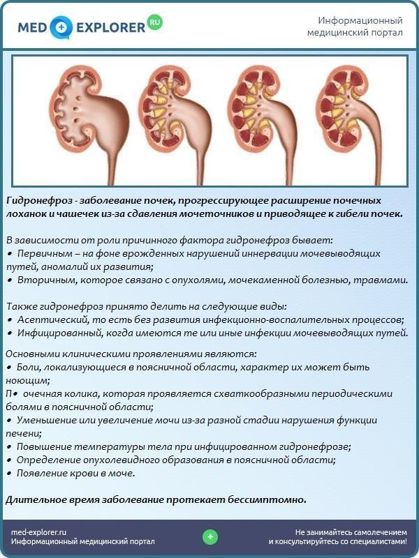 Гидронефроз – одна из самых часто встречающихся патологий почек
