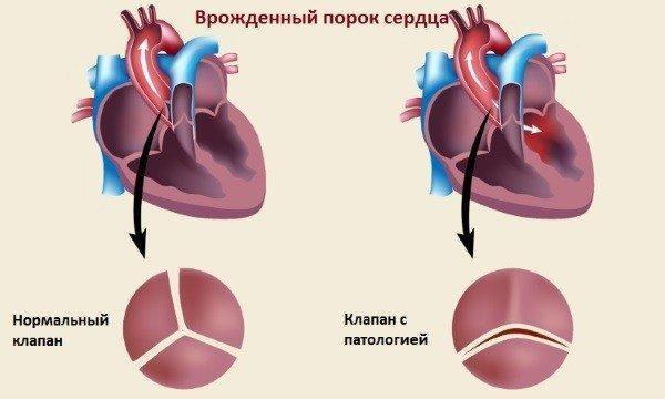 Врожденный порок сердца требует обязательного наблюдения у специалиста на протяжении всей беременности
