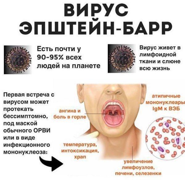 Мононуклеоз является острым инфекционным заболеванием вирусной природы