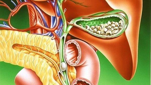 Очень часто холецистит развивается на фоне желчекаменной болезни
