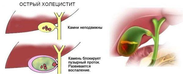 Механизм развития холецистита