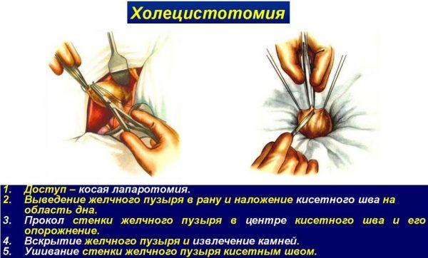 Техника проведения холецистотомии