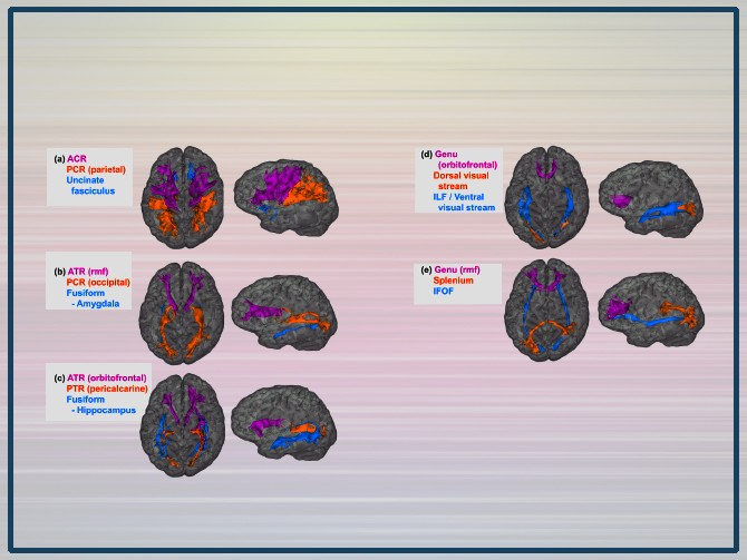 Примеры каждого очерченного трактата для типичного субъекта