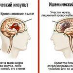Ишемический и геморрагический инсульт – отличия