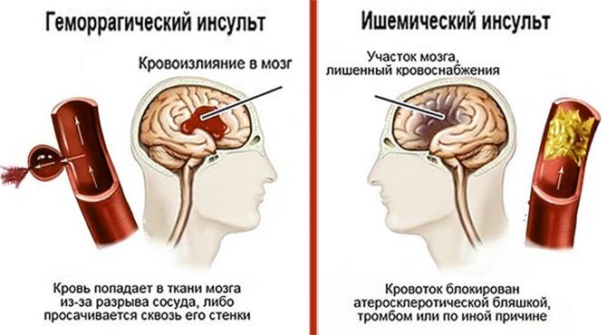 Механизм возникновения инсульта