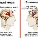 Отличия ишемического и геморрагического инсультов