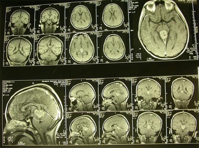 Результат МРТ