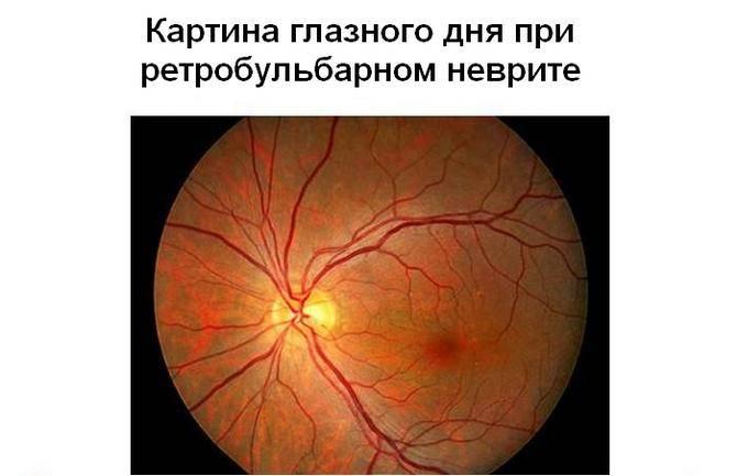 Глазное дно при ретробульбарном неврите