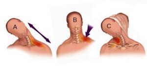 Локация боли при плечевом неврите