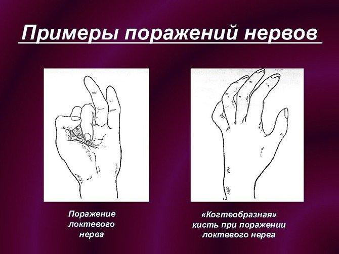 Примеры поражений нервов