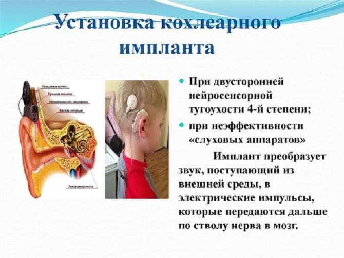Установка кохлеарного импланта