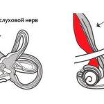 Кохлеарный неврит слухового нерва: симптомы, лечение