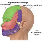 Неврит тройничного нерва – симптомы и лечение