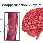 Геморрагический инсульт головного мозга — последствия и прогнозы