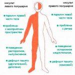 Геморрагический инсульт левой стороны: последствия