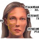 Гимнастика при неврите лицевого нерва