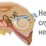 Неврит слухового нерва: симптомы заболевания