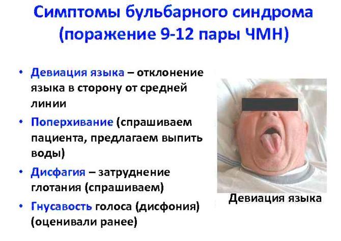 Симптомы бульбарного паралича
