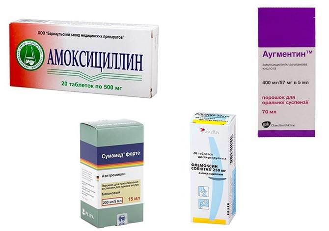 Антибиотики от воспаления лимфоузлов