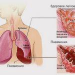 Список лекарств от пневмонии