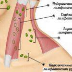 Причины воспаления лимфоузла на шее