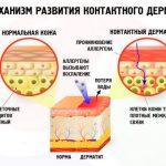 Причины и симптомы дерматита у ребенка