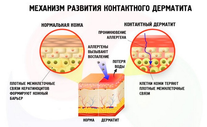 Развитие контактного дерматита