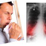 Признаки воспаления легких у взрослых симптомы